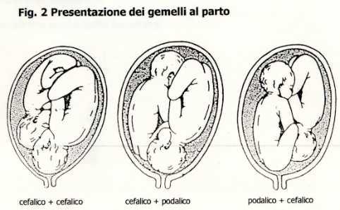 calcolo aumento di peso in gravidanza gemellare