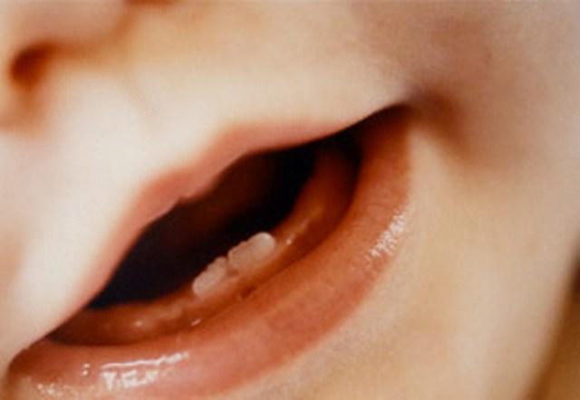 dentini_640