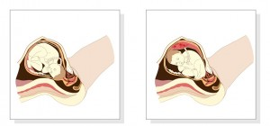 Variation in  fetal presentation