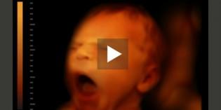 Il viso del bebè senza segreti con le ecografie 4D