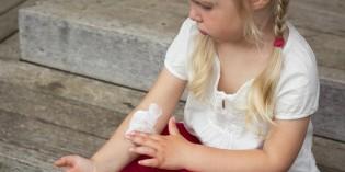 Dermatite atopica: cause, sintomi e cure