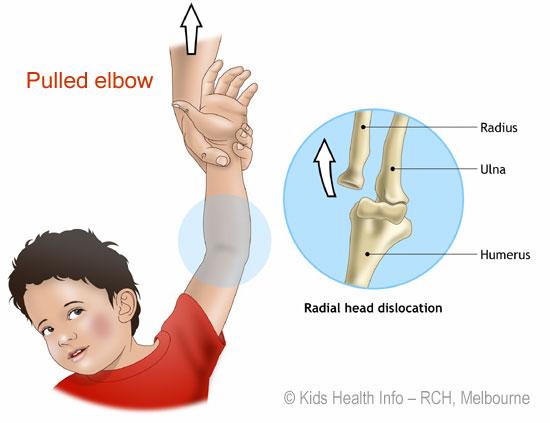 pronazione dolorosa braccio bambino