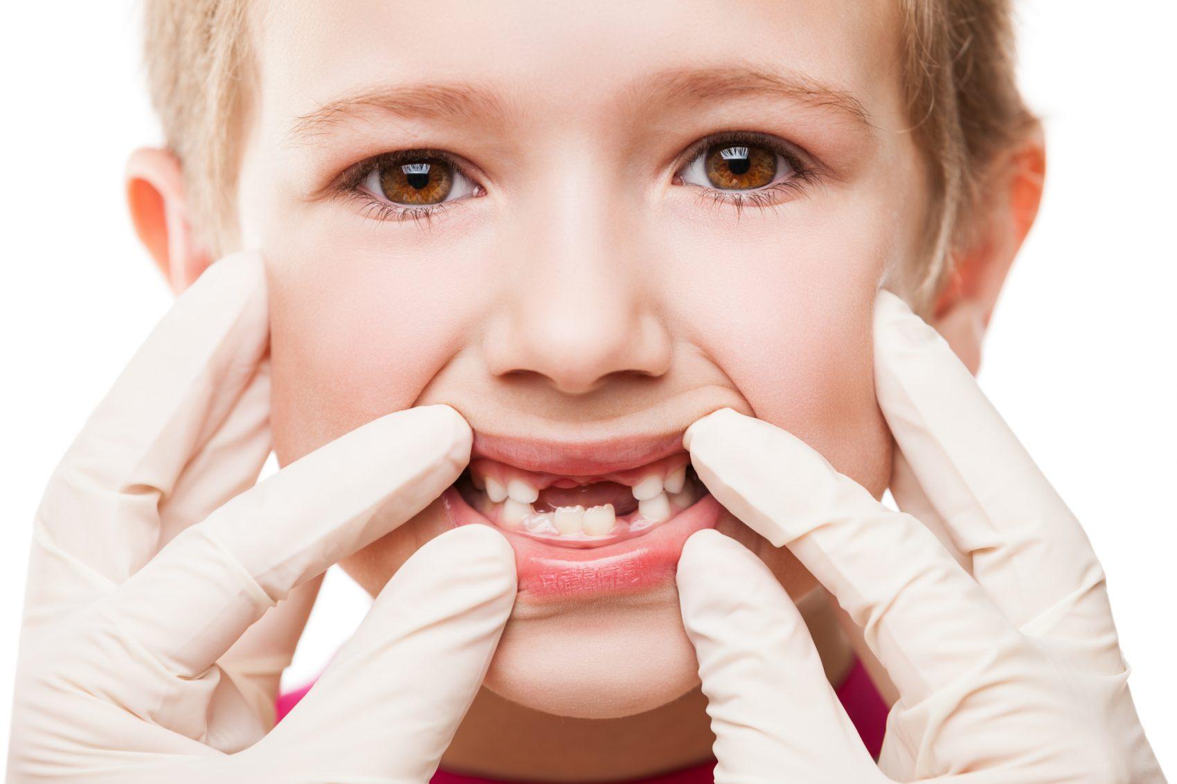 dentizione bambini