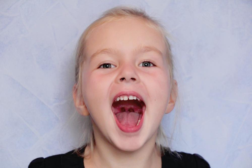 Sigillatura dei molari